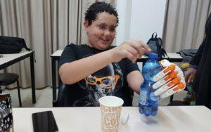 Izraeli találmány — hagyományos protézis helyett szuperhős robotkéz