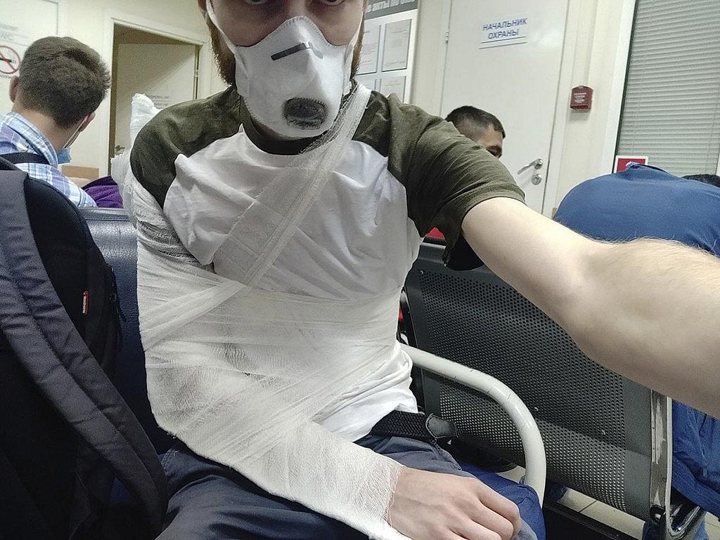 Eltörték az orosz rendőrök egy újságíró vállcsontját